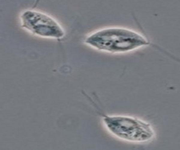 Trichomoniasis: diagnósticos conflictivos, sospechosos o falsos positivos