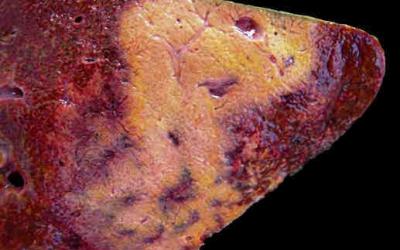 Brote de Hemoglobinuria Bacilar: diagnóstico confirmatorio y medidas de control.